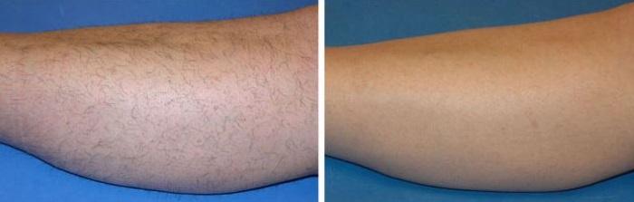 Фото до и после эпиляции ног воском