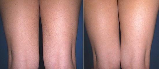 Фото до и после эпиляции воском