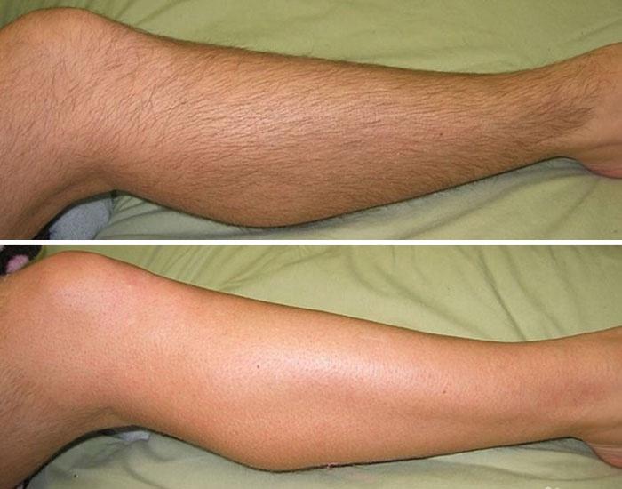 Фото до и после эпиляции воском в салоне