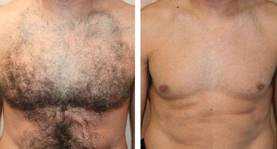 Фото до и после восковой эпиляции