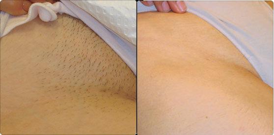 Фото до и после депиляции бикини