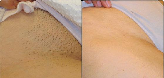 Фото до и после восковой эпиляции бикини
