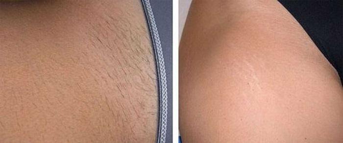 Фото до и после шугаринг бикини