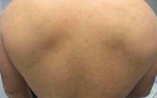 epilyaciya-spiny-posle