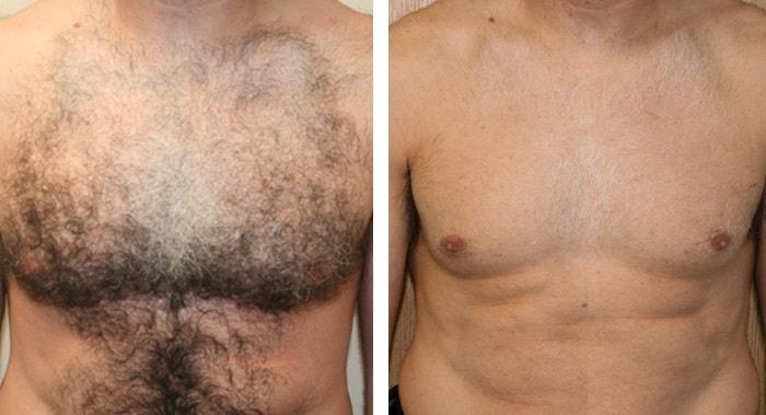 Фото до и после мужской депиляции