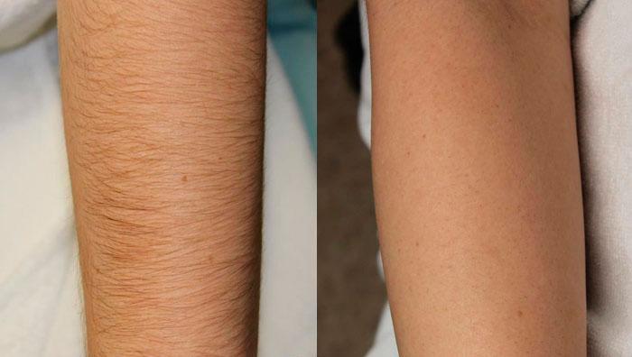 Скинс фото до и после