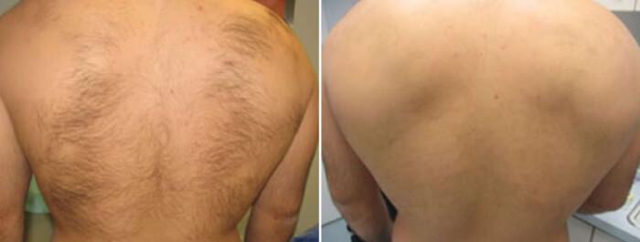 Фото до и после шугаринга спины