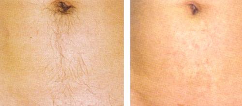 фото до и после шугаринга живота